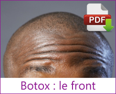 Botox : Front