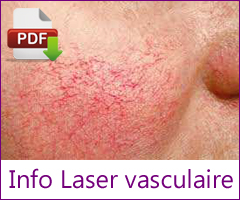 Info laser vasculaire